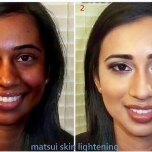 Skin lightening cream for normal skin
